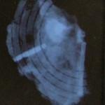 X-ray recording